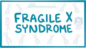 Fragile X is a mutation on the X chromosome.